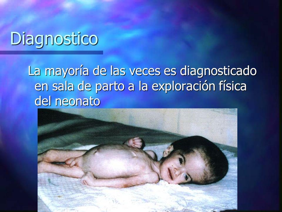 Diagnostico La mayoría de las veces es diagnosticado en sala de parto a la exploración física del neonato La mayoría de las veces es diagnosticado en