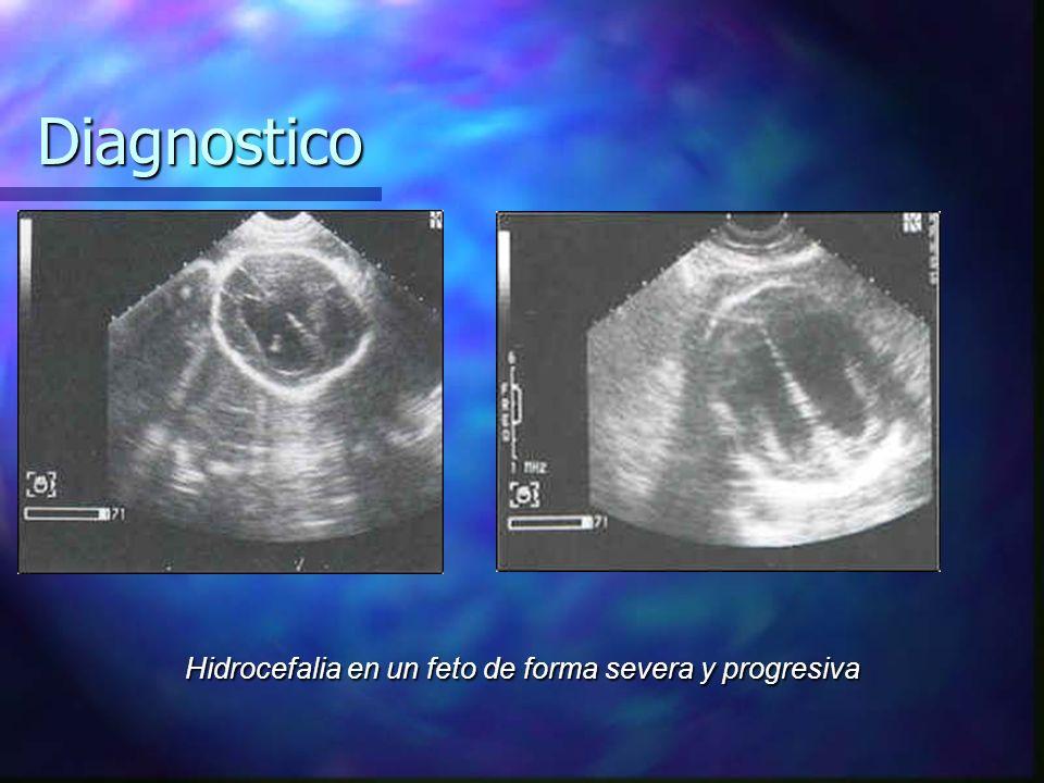 Diagnostico Hidrocefalia en un feto de forma severa y progresiva