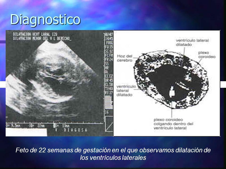Diagnostico Feto de 22 semanas de gestación en el que observamos dilatación de los ventrículos laterales