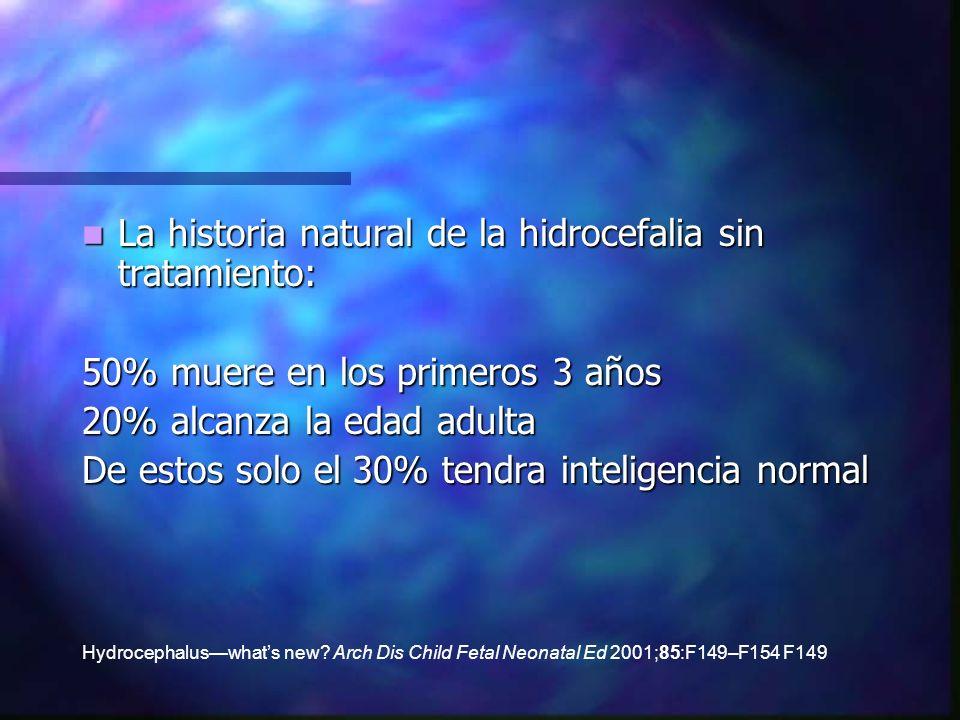 La historia natural de la hidrocefalia sin tratamiento: La historia natural de la hidrocefalia sin tratamiento: 50% muere en los primeros 3 años 20% a