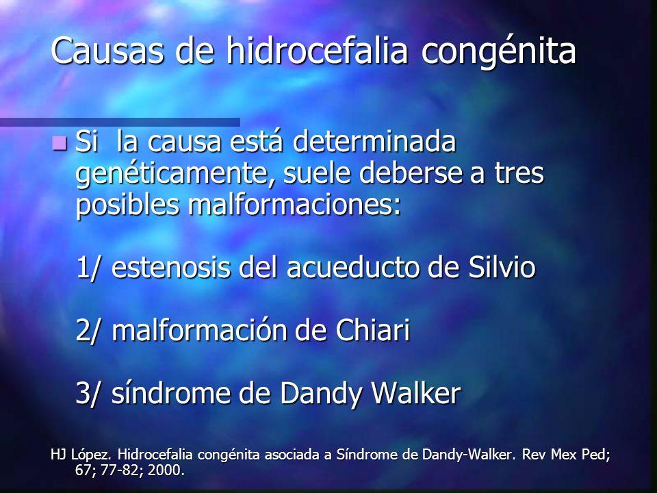 Causas de hidrocefalia congénita Si la causa está determinada genéticamente, suele deberse a tres posibles malformaciones: 1/ estenosis del acueducto