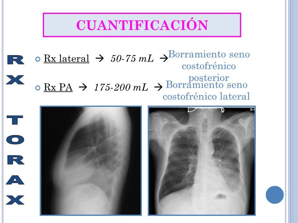 Rx lateral 50-75 mL Rx PA 175-200 mL CUANTIFICACIÓN Borramiento seno costofrénico posterior Borramiento seno costofrénico lateral