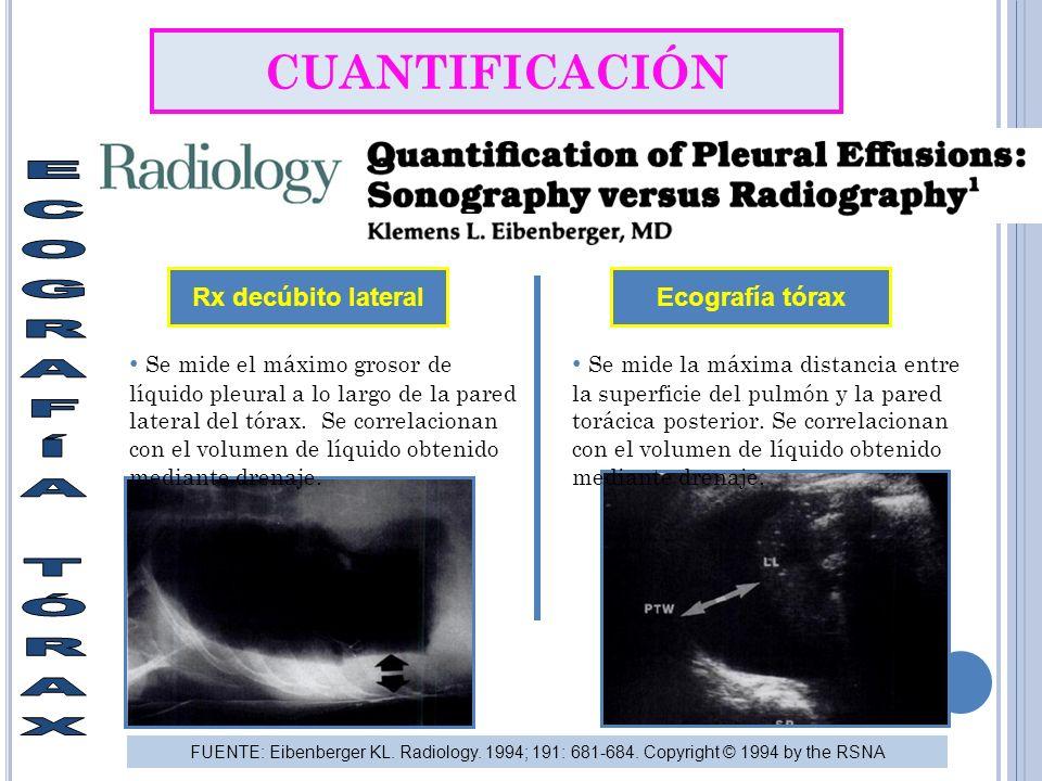 CUANTIFICACIÓN Rx decúbito lateral Ecografía tórax Se mide el máximo grosor de líquido pleural a lo largo de la pared lateral del tórax.