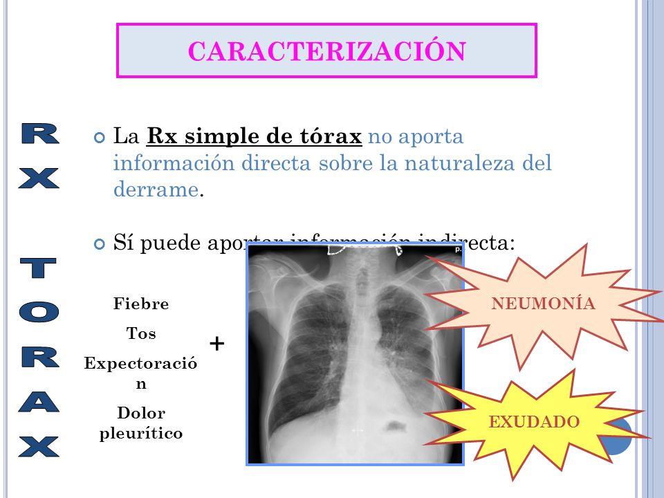 La Rx simple de tórax no aporta información directa sobre la naturaleza del derrame. Sí puede aportar información indirecta: CARACTERIZACIÓN Fiebre To