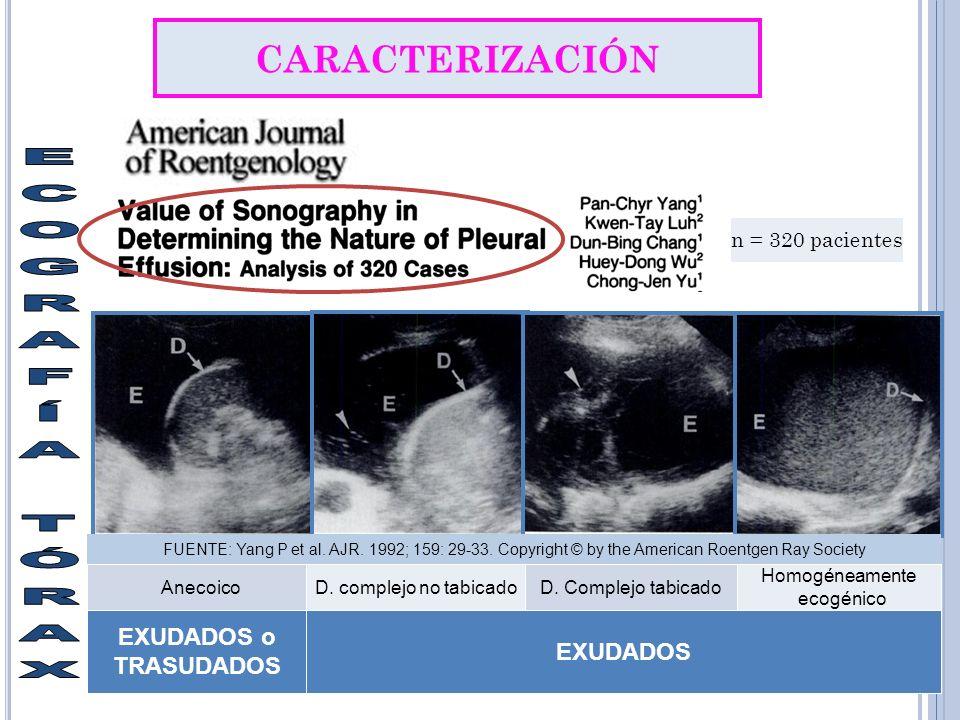CARACTERIZACIÓN AnecoicoD.complejo no tabicadoD.