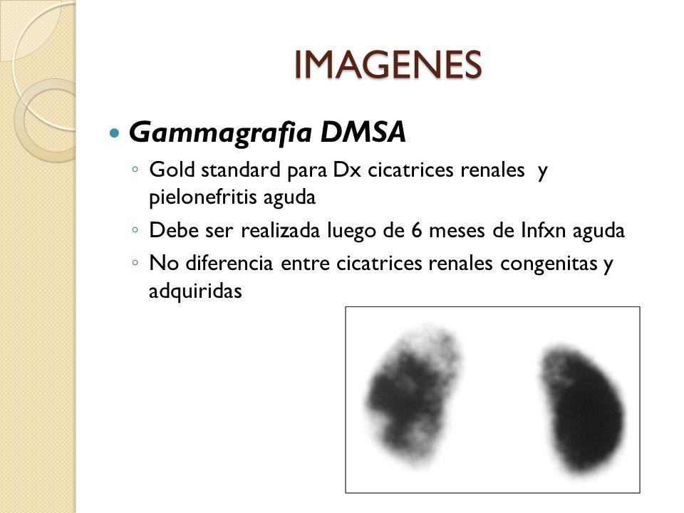 Gammagrafia DMSA Gold standard para Dx cicatrices renales y pielonefritis aguda Debe ser realizada luego de 6 meses de Infxn aguda No diferencia entre cicatrices renales congenitas y adquiridas IMAGENES
