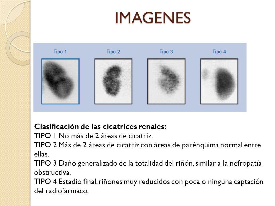 IMAGENES Clasificación de las cicatrices renales: TIPO 1 No más de 2 áreas de cicatriz.