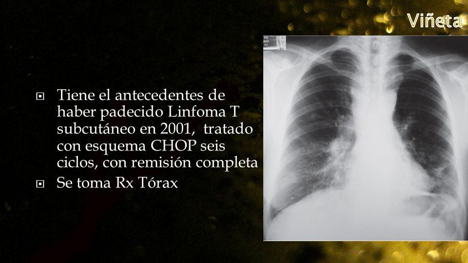 Tiene el antecedentes de haber padecido Linfoma T subcutáneo en 2001, tratado con esquema CHOP seis ciclos, con remisión completa Se toma Rx Tórax
