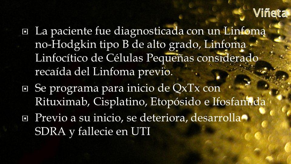 La paciente fue diagnosticada con un Linfoma no-Hodgkin tipo B de alto grado, Linfoma Linfocítico de Células Pequeñas considerado recaída del Linfoma