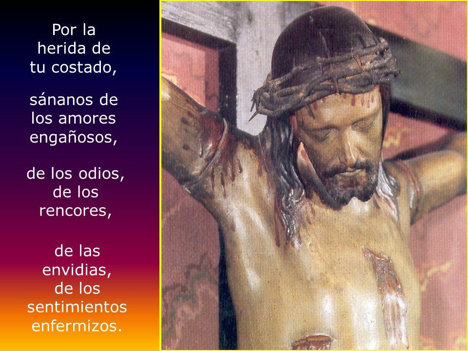 ¡¡¡ ¡ Jesús, sánanos! Por tus heridas,