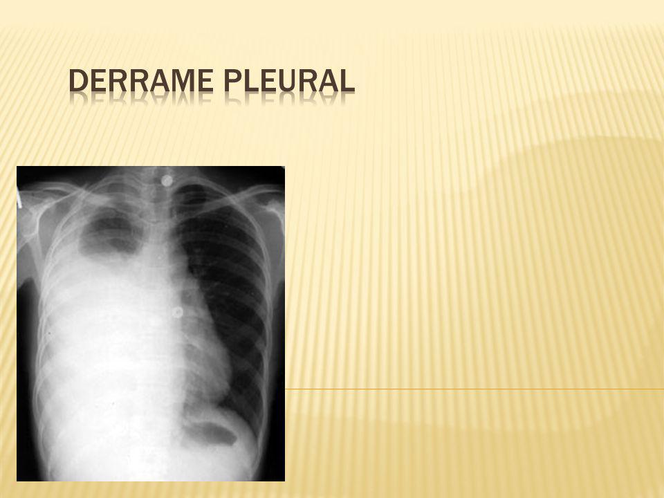 Es el acúmulo anormal de un exceso de líquido en la cavidad torácica que resulta del desequilibrio entre la formación del líquido pleural y su remoción