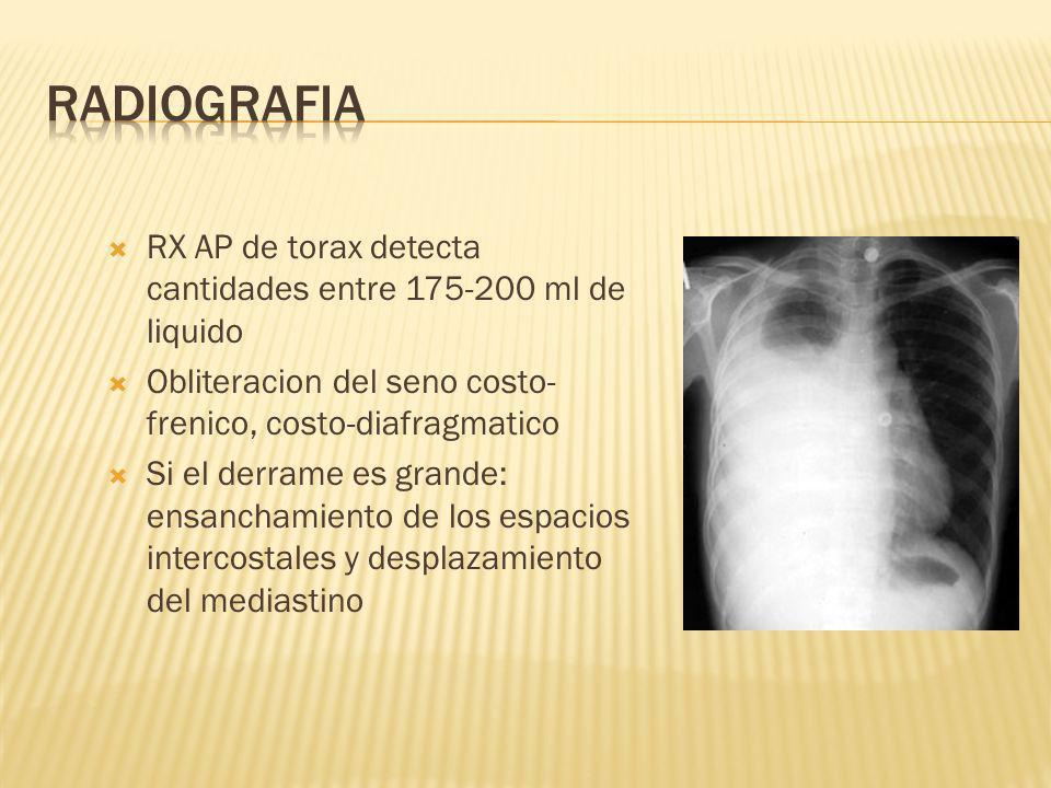 RX AP de torax detecta cantidades entre 175-200 ml de liquido Obliteracion del seno costo- frenico, costo-diafragmatico Si el derrame es grande: ensanchamiento de los espacios intercostales y desplazamiento del mediastino