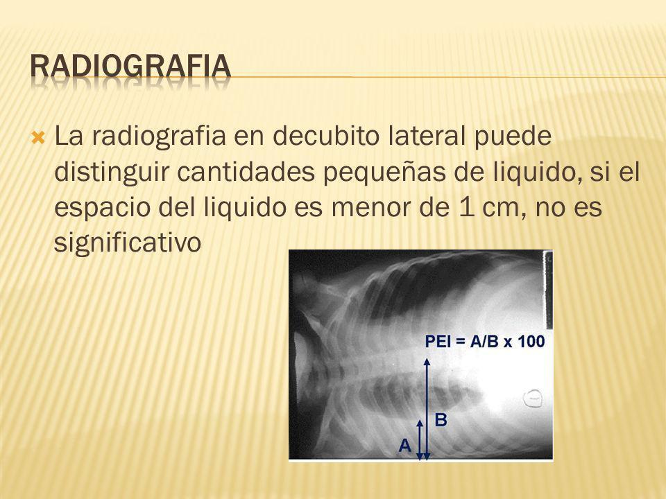 La radiografia en decubito lateral puede distinguir cantidades pequeñas de liquido, si el espacio del liquido es menor de 1 cm, no es significativo
