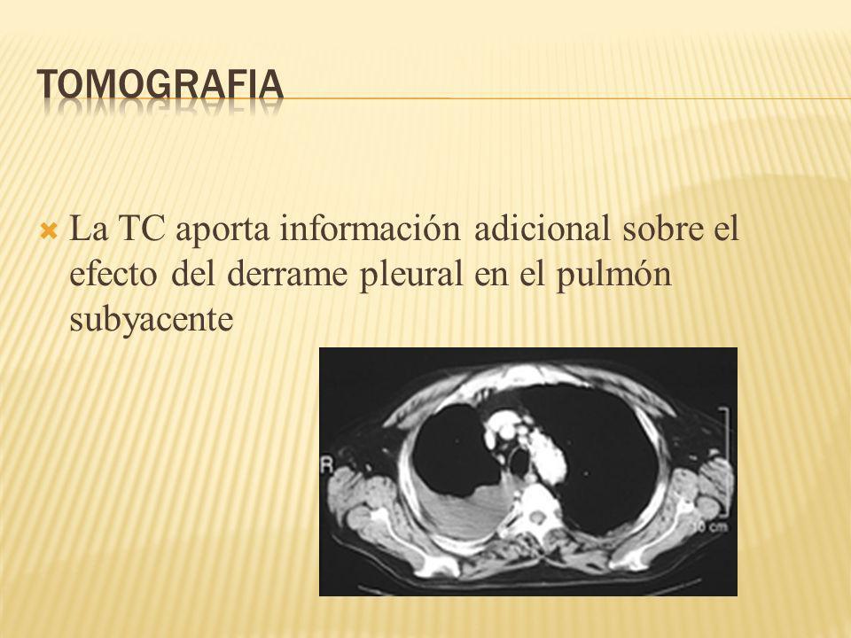 La TC aporta información adicional sobre el efecto del derrame pleural en el pulmón subyacente
