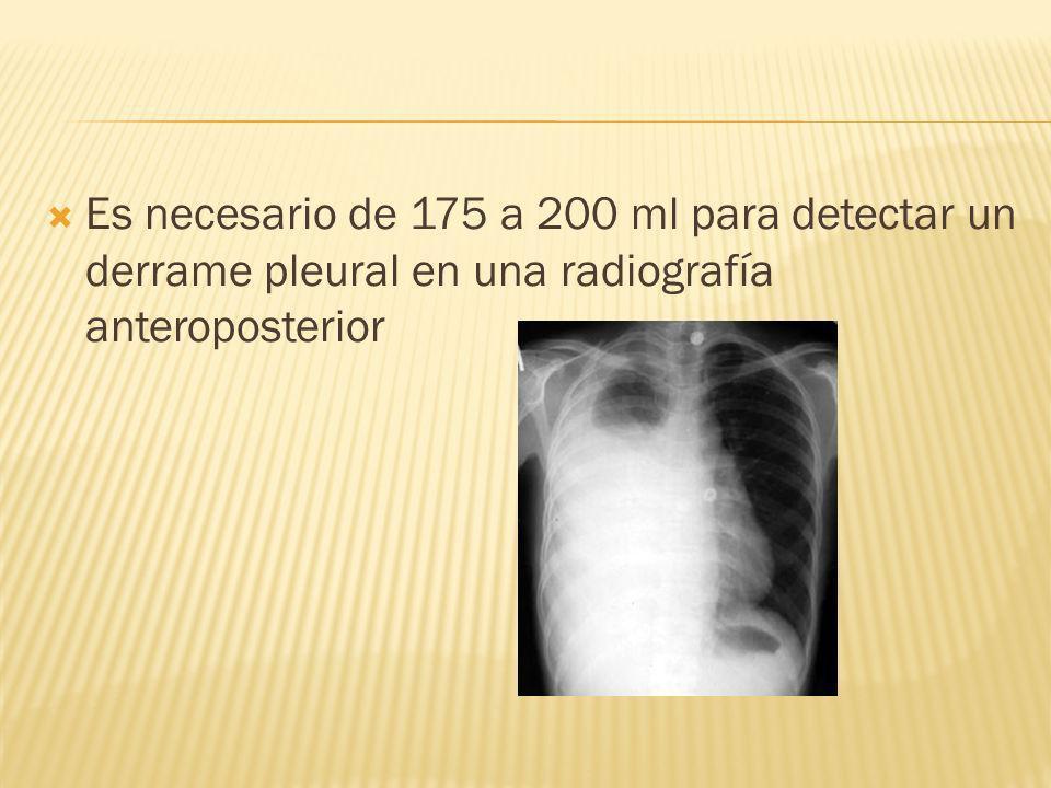 Cuando no se llega al diagnóstico del DP se hará toracoscopia o toracotomía, permitiendo la visualización directa de la pleura y la toma dirigida de biopsias pleurales