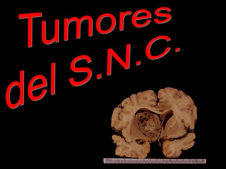 2.TUMORES NO GLIALES 2.5. Tumores de los nervios craneanos y espinales 2.5.1.