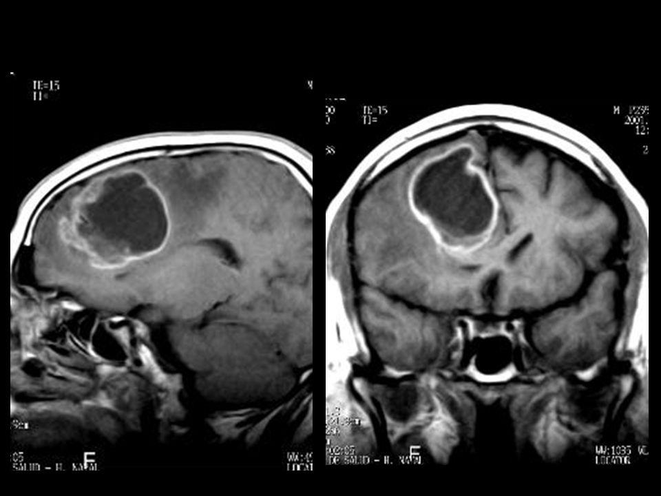 23575 astrocitoma pilocitico guadalupe_raul026.jpg