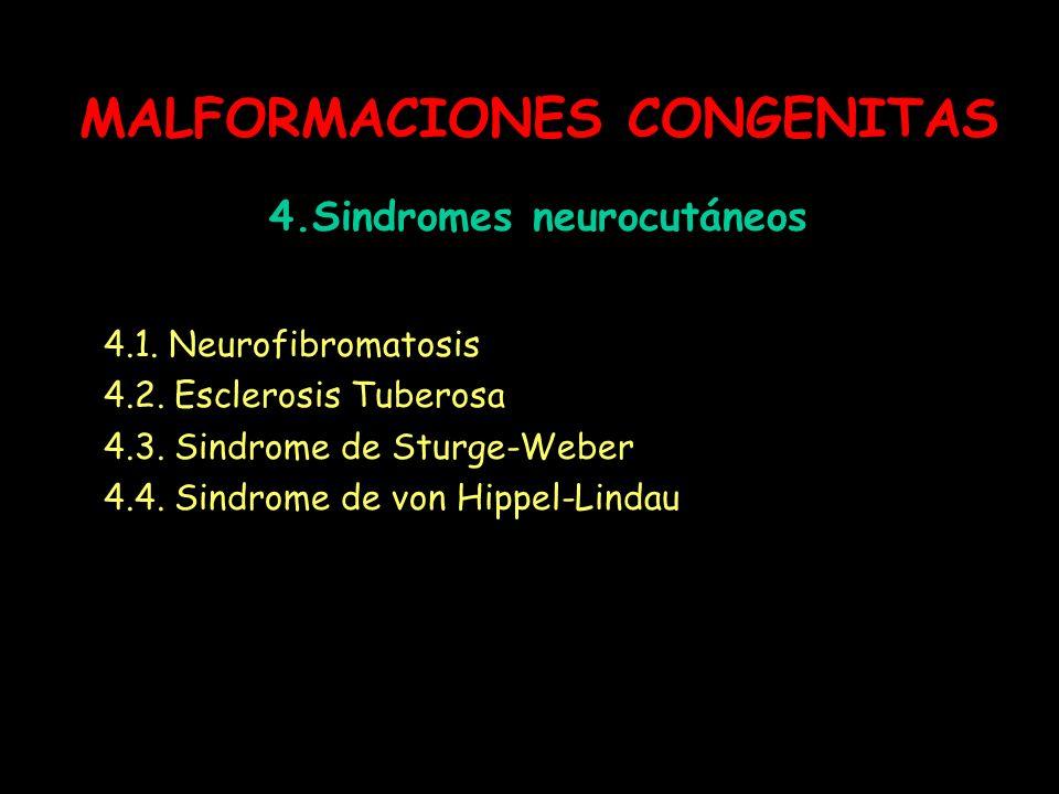 MALFORMACIONES CONGENITAS 4.Sindromes neurocutáneos 4.1. Neurofibromatosis 4.2. Esclerosis Tuberosa 4.3. Sindrome de Sturge-Weber 4.4. Sindrome de von