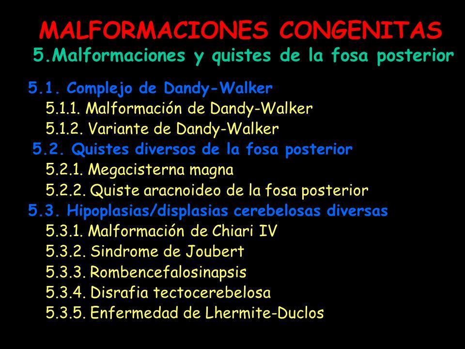 MALFORMACIONES CONGENITAS 5.Malformaciones y quistes de la fosa posterior 5.1. Complejo de Dandy-Walker 5.1.1. Malformación de Dandy-Walker 5.1.2. Var