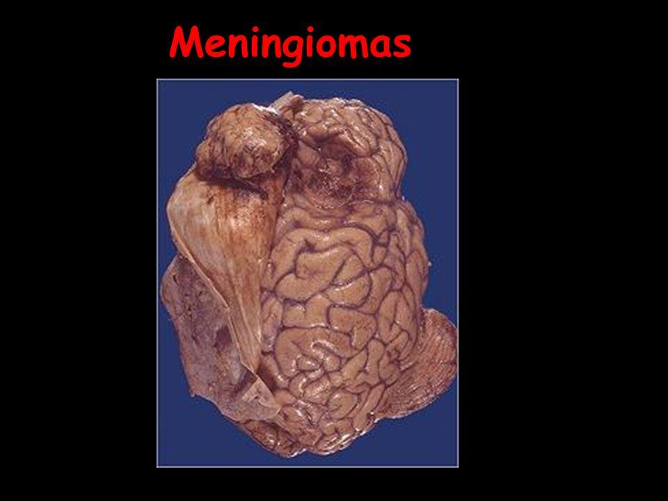 meningioma 03.jpg Note how this meningioma beneath the dura has compressed the underlying cerebral hemisphere. Rarely, meningiomas can be more aggress