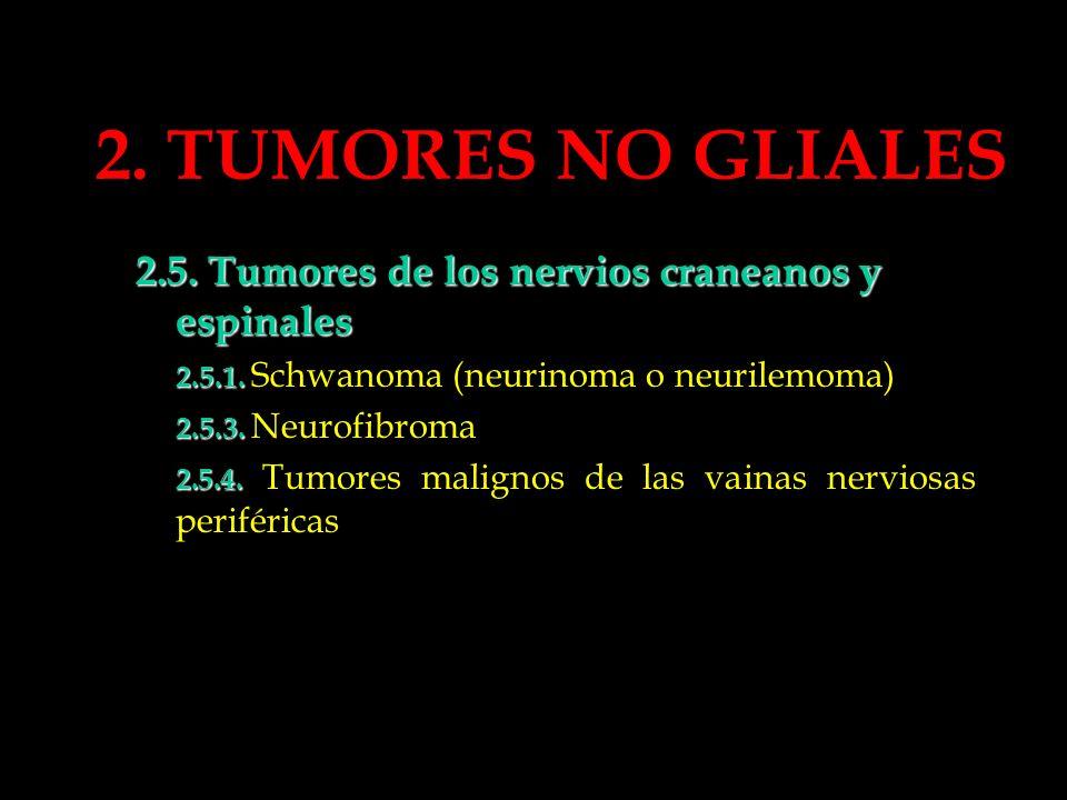 2. TUMORES NO GLIALES 2.5. Tumores de los nervios craneanos y espinales 2.5.1. 2.5.1. Schwanoma (neurinoma o neurilemoma) 2.5.3. 2.5.3. Neurofibroma 2