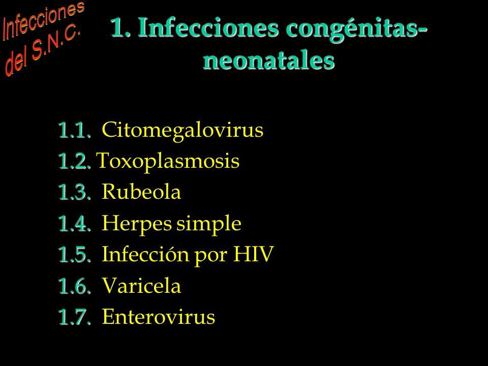 1. Infecciones congénitas- neonatales 1.1. 1.1. Citomegalovirus 1.2. 1.2. Toxoplasmosis 1.3. 1.3. Rubeola 1.4. 1.4. Herpes simple 1.5. 1.5. Infección