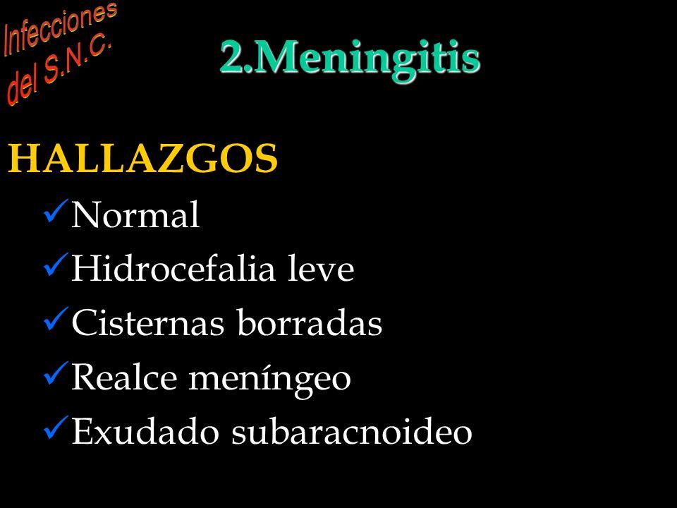 INFECCIONES DEL S.N.C. 2.Meningitis HALLAZGOS (del Anne Osborn) Normal Hidrocefalia leve Cisternas borradas Realce meníngeo Exudado subaracnoideo INFE