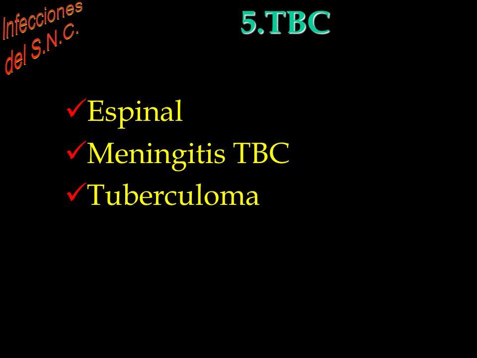 5. Tuberculosis e infecciones por hongos Espinal Meningitis TBC Tuberculoma 5.TBC INFECCIONES DEL S.N.C. 5.TBC