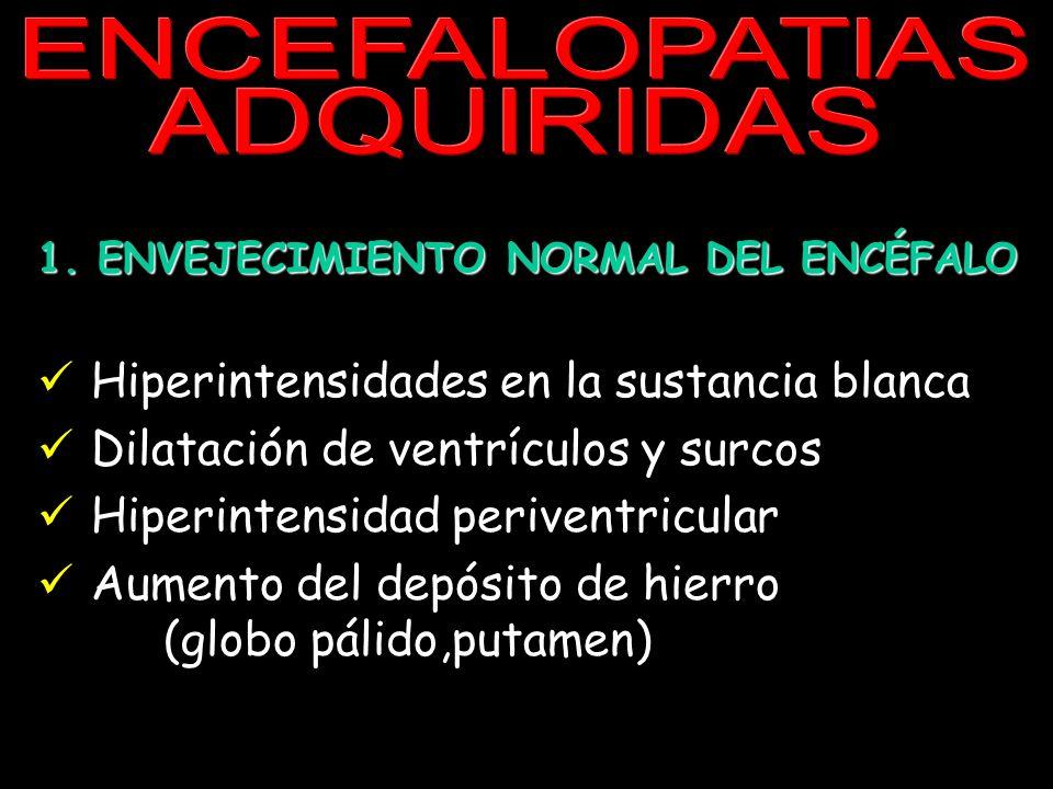 ENCEFALOPATIAS ADQUIRIDAS 1. ENVEJECIMIENTO NORMAL DEL ENCÉFALO Hiperintensidades en la sustancia blanca Dilatación de ventrículos y surcos Hiperinten