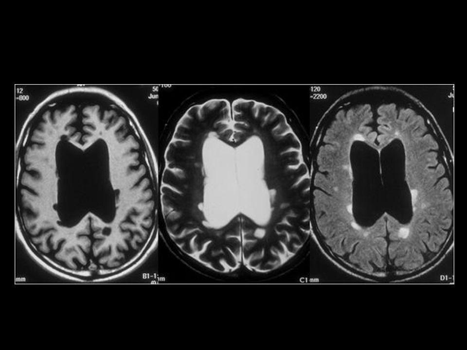 Esclerosis multiple (T1,T2,FLAIR)