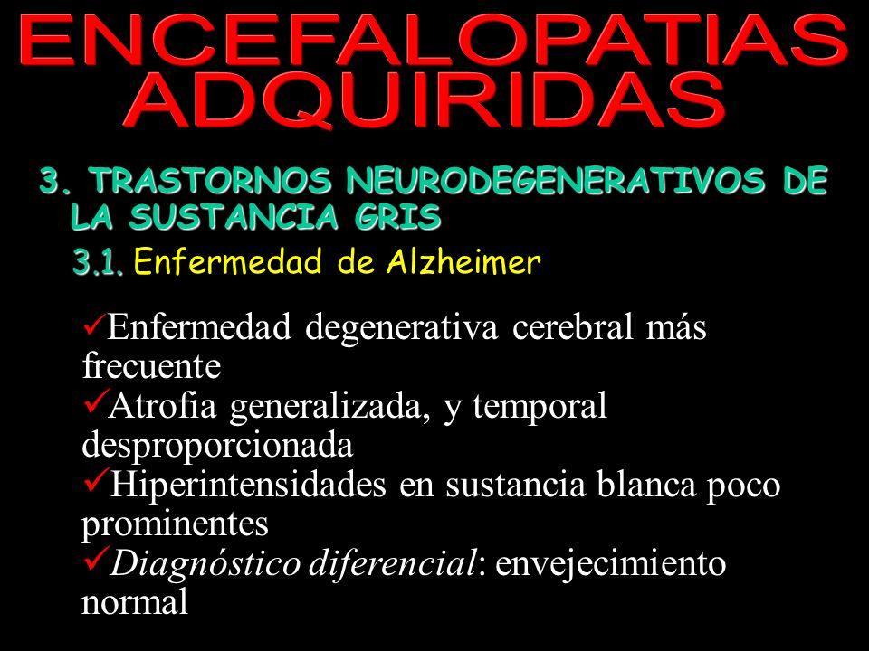 ENCEFALOPATIAS ADQUIRIDAS 3. TRASTORNOS NEURODEGENERATIVOS DE LA SUSTANCIA GRIS 3.1. 3.1. Enfermedad de Alzheimer y otras demencias corticales 3.2. Tr