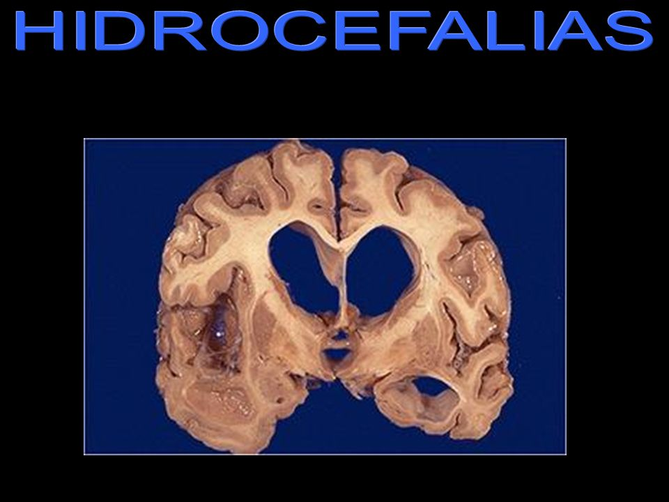 HIDROCEFALIAS hidrocefalia.jpg Note the marked dilation of the cerebral ventricles. This is hydrocephalus. Hydrocephalus can be due to lack of absorpt