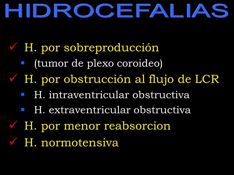 HIDROCEFALIAS H. por sobreproducción (tumor de plexo coroideo) H. por obstrucción al flujo de LCR H. intraventricular obstructiva H. extraventricular