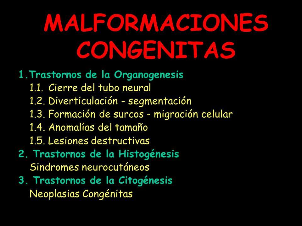 MALFORMACIONES CONGENITAS 1.Trastornos de la Organogenesis 1.1. Cierre del tubo neural 1.2. Diverticulación - segmentación 1.3. Formación de surcos -