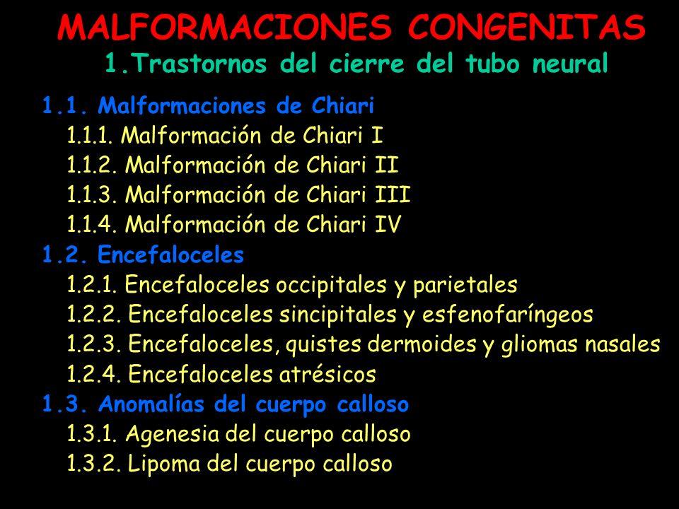 MALFORMACIONES CONGENITAS 1.Trastornos del cierre del tubo neural 1.1. Malformaciones de Chiari 1.1.1. Malformación de Chiari I 1.1.2. Malformación de