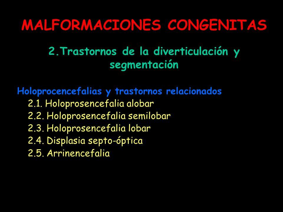 MALFORMACIONES CONGENITAS 2.Trastornos de la diverticulación y segmentación Holoprocencefalias y trastornos relacionados 2.1. Holoprosencefalia alobar