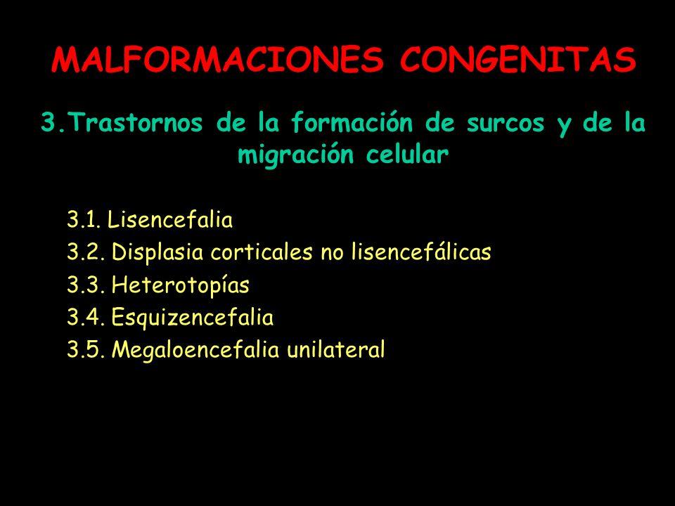 MALFORMACIONES CONGENITAS 3.Trastornos de la formación de surcos y de la migración celular 3.1. Lisencefalia 3.2. Displasia corticales no lisencefálic
