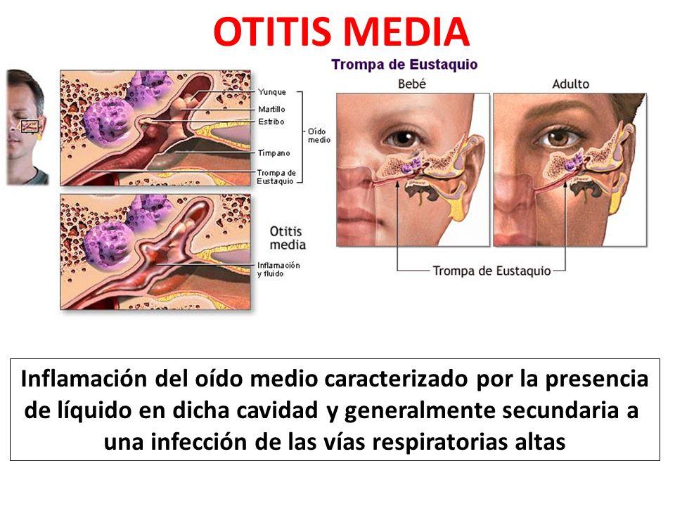 OTITIS MEDIA Inflamación del oído medio caracterizado por la presencia de líquido en dicha cavidad y generalmente secundaria a una infección de las vías respiratorias altas