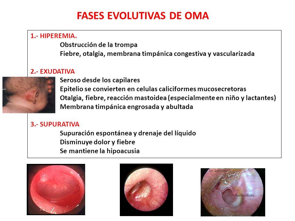 FASES EVOLUTIVAS DE OMA 1.- HIPEREMIA. Obstrucción de la trompa Fiebre, otalgia, membrana timpánica congestiva y vascularizada 2.- EXUDATIVA Seroso de