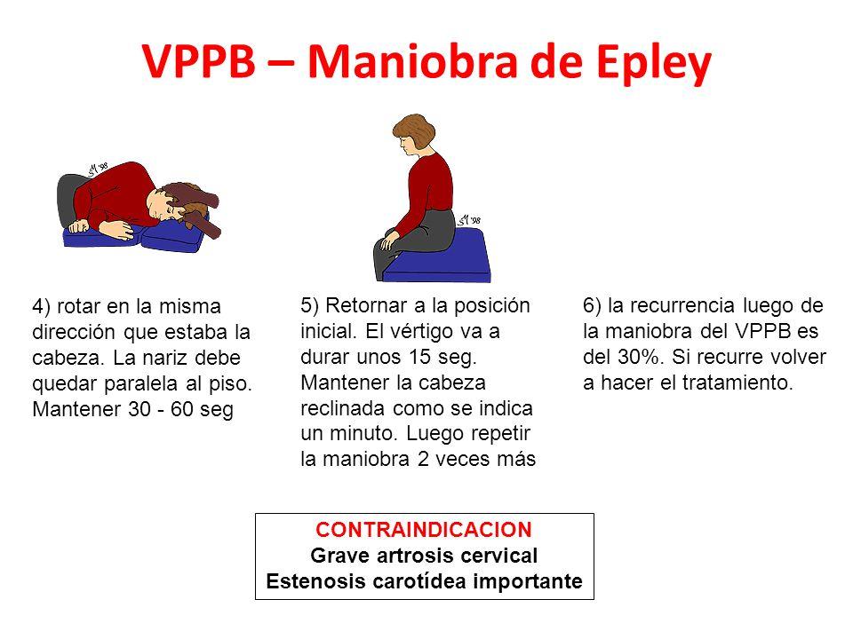 VPPB – Maniobra de Epley 4) rotar en la misma dirección que estaba la cabeza. La nariz debe quedar paralela al piso. Mantener 30 - 60 seg 5) Retornar