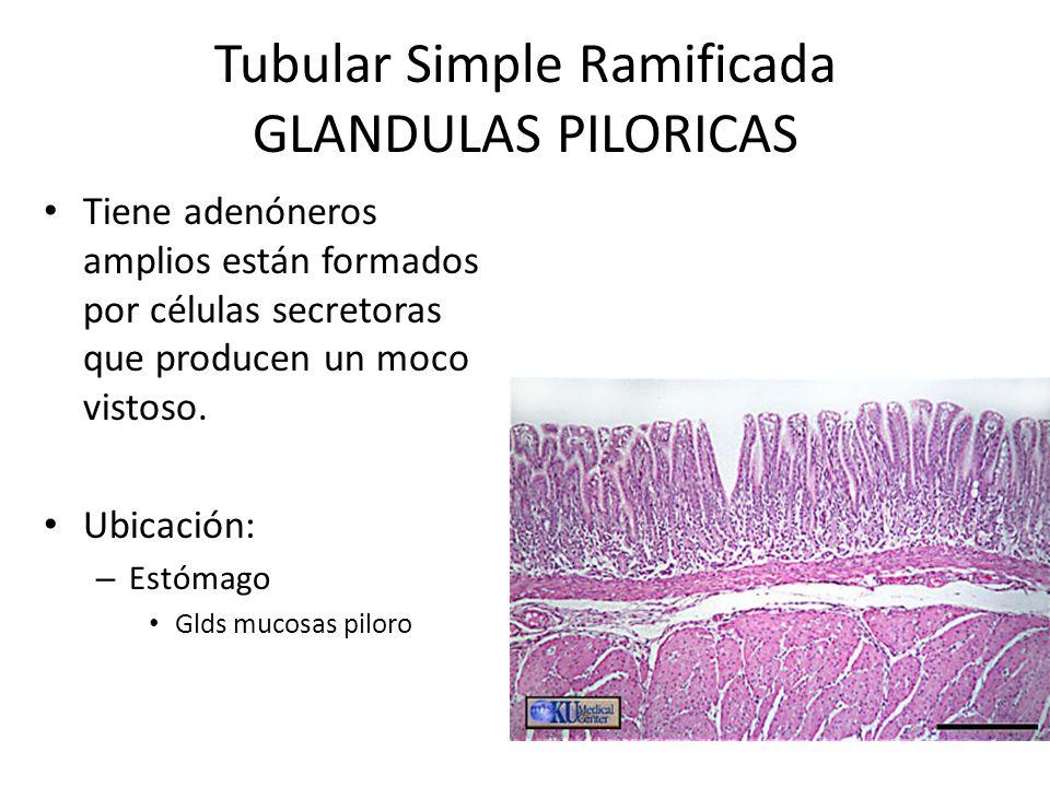 Tubular Simple Ramificada GLANDULAS PILORICAS Tiene adenóneros amplios están formados por células secretoras que producen un moco vistoso. Ubicación: