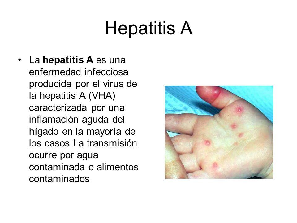 Hepatitis A La hepatitis A es una enfermedad infecciosa producida por el virus de la hepatitis A (VHA) caracterizada por una inflamación aguda del híg