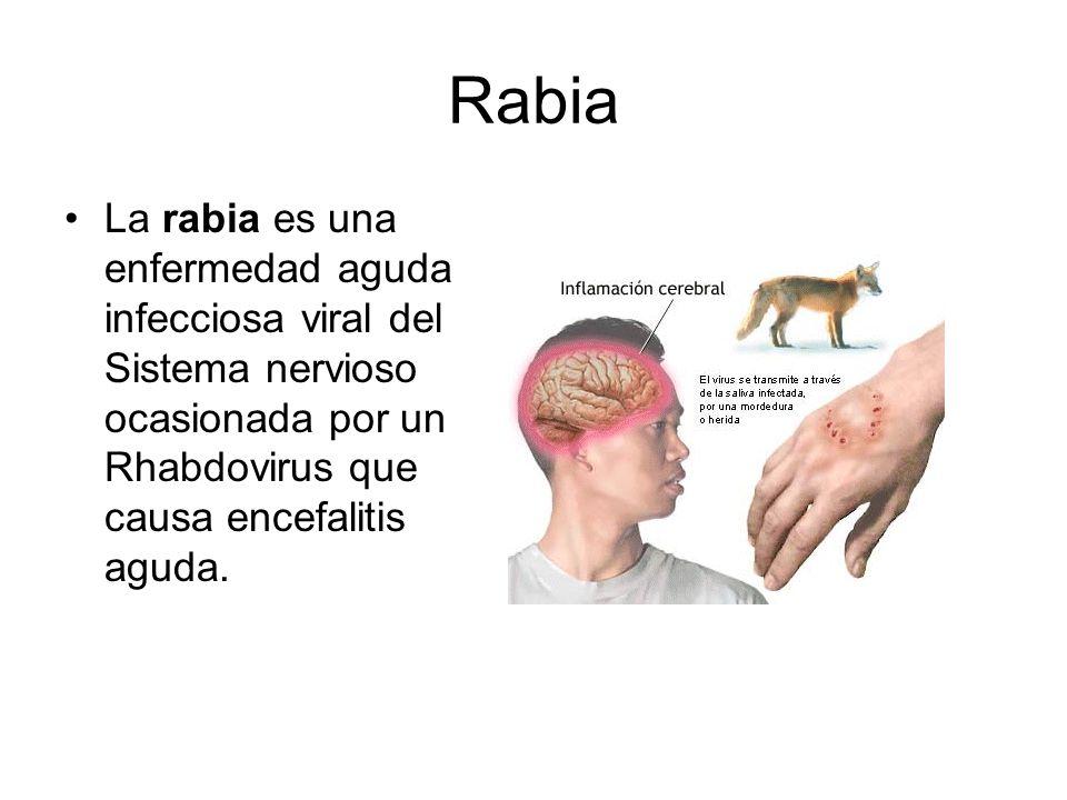 Rabia La rabia es una enfermedad aguda infecciosa viral del Sistema nervioso ocasionada por un Rhabdovirus que causa encefalitis aguda.