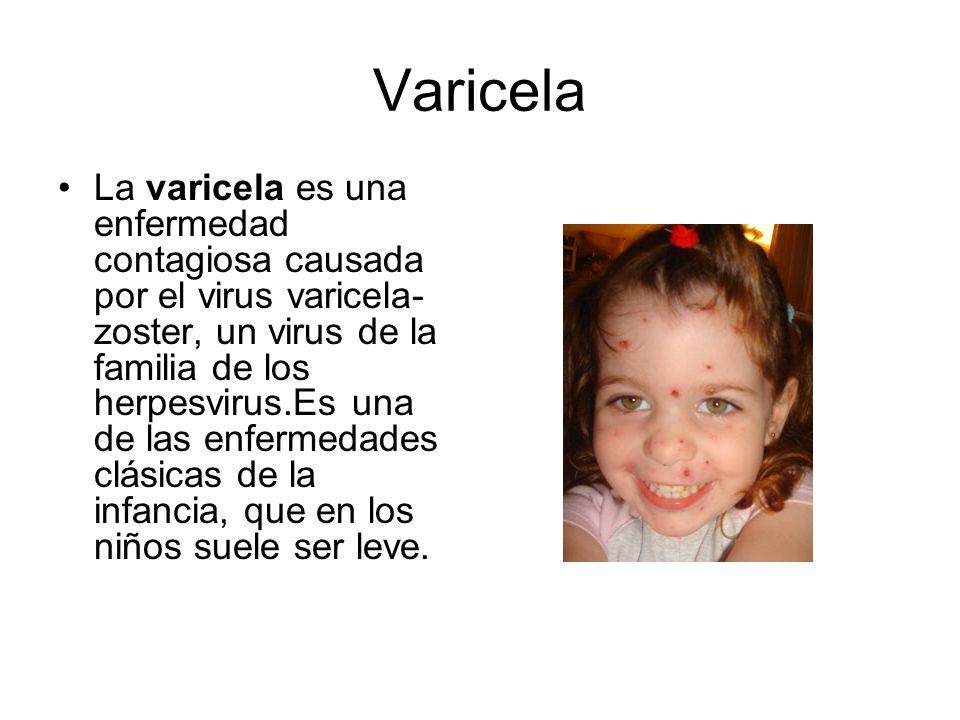 Varicela La varicela es una enfermedad contagiosa causada por el virus varicela- zoster, un virus de la familia de los herpesvirus.Es una de las enfer