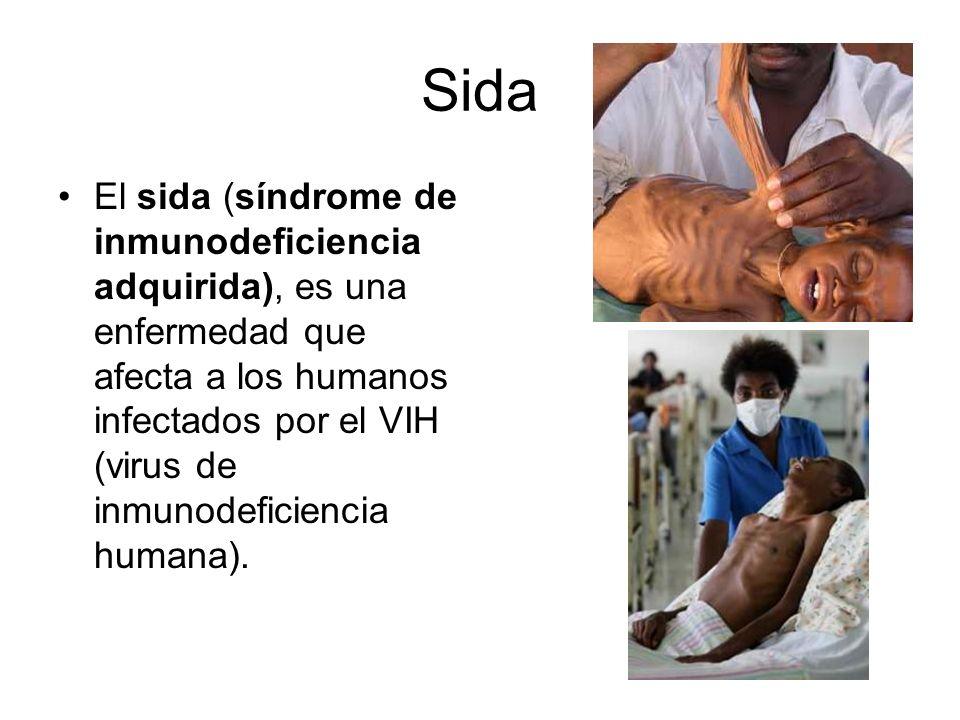 Sida El sida (síndrome de inmunodeficiencia adquirida), es una enfermedad que afecta a los humanos infectados por el VIH (virus de inmunodeficiencia h
