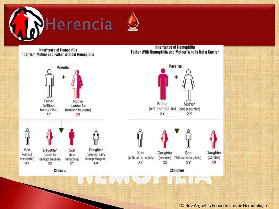 G.J Ruiz Argüelles, Fundamentos de Hematología Ligada al cromosoma X Mujeres portadoras Hombres manifiestan Hijos 50% gen anormal 70-75% hemofílicos a