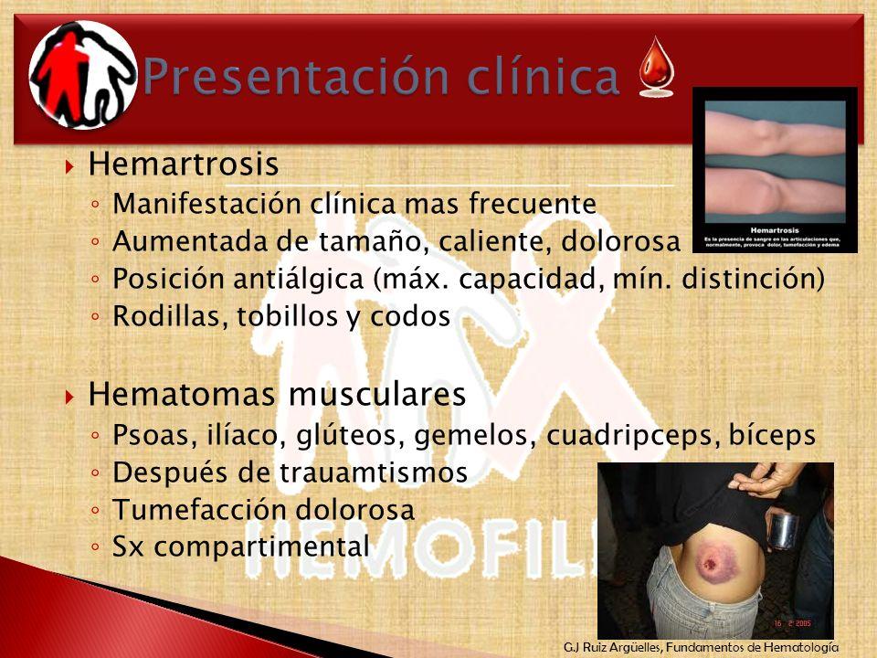 G.J Ruiz Argüelles, Fundamentos de Hematología Hemartrosis Manifestación clínica mas frecuente Aumentada de tamaño, caliente, dolorosa Posición antiál