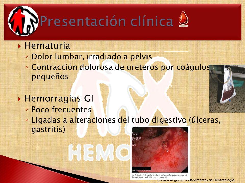 G.J Ruiz Argüelles, Fundamentos de Hematología Hematuria Dolor lumbar, irradiado a pélvis Contracción dolorosa de ureteros por coágulos pequeños Hemor