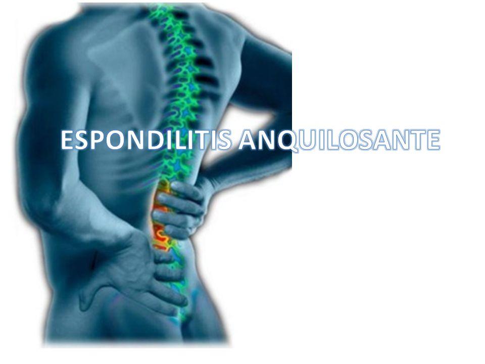 Artritis axial El dolor lumbar es de comienzo insidioso, difuso, con rigidez matinal, inflamatorio Dolor en los glúteos de carácter esporádico y alternante o dolor torácico Los cambios radiológicos de la EAE son semejantes a los de la forma idiopática Los síntomas no se relacionan con las exacerbaciones o remisiones de la EII Estos síntomas axiales usualmente ocurren después de los intestinales (preceder por años) Ramirez Gómez L, Vasquez Duque GM, Muñoz Maya OG, Manifestaciones reumatológicas de la enfermedad inflamatoria intestinal, Iatreia vol 19, no.3 Medellín July/Sept.