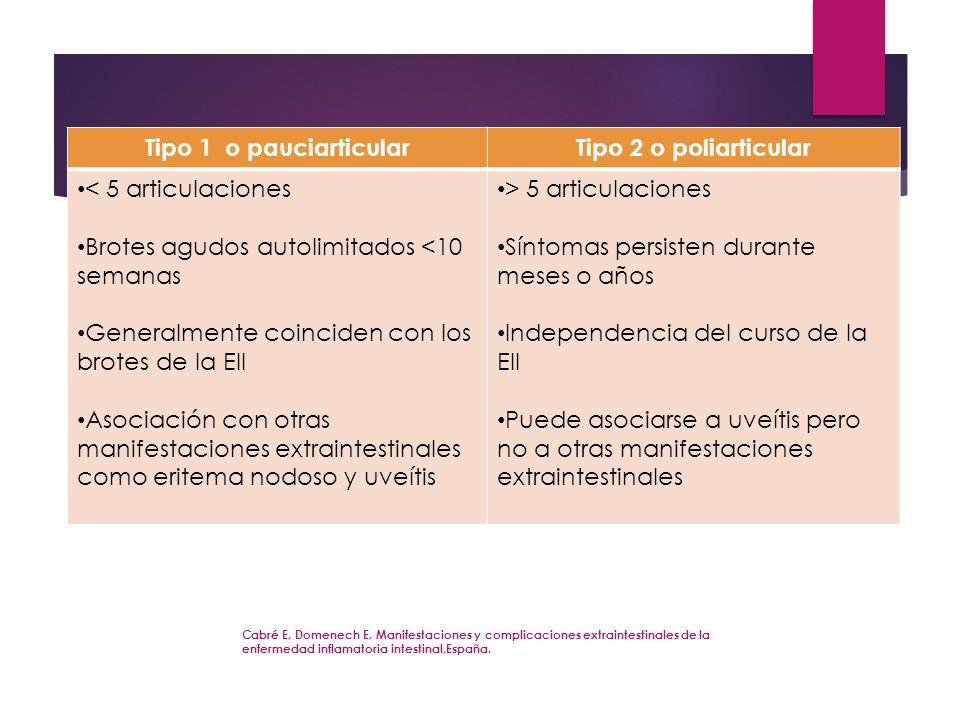 Cabré E, Domenech E, Manifestaciones y complicaciones extraintestinales de la enfermedad inflamatoria intestinal,España. Tipo 1 o pauciarticularTipo 2